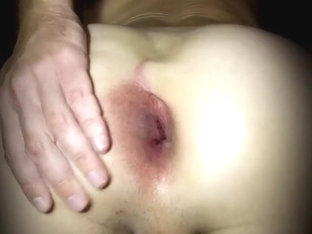 What could have caused such gape?